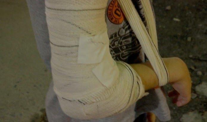 Criança teve o braço quebrado ao ser espancada pelo padrasto — Foto: TVCA/Reprodução