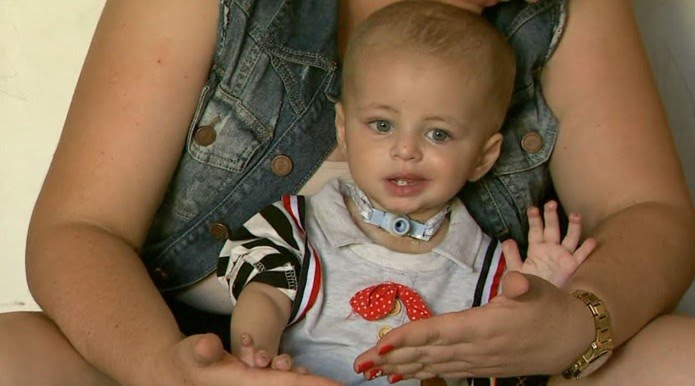 Miguel, de 1 ano, teve extremidades dos dedos e pé esquerdo amputado após ser atendido na Santa Casa de Franca, SP (Foto: Reprodução/EPTV)